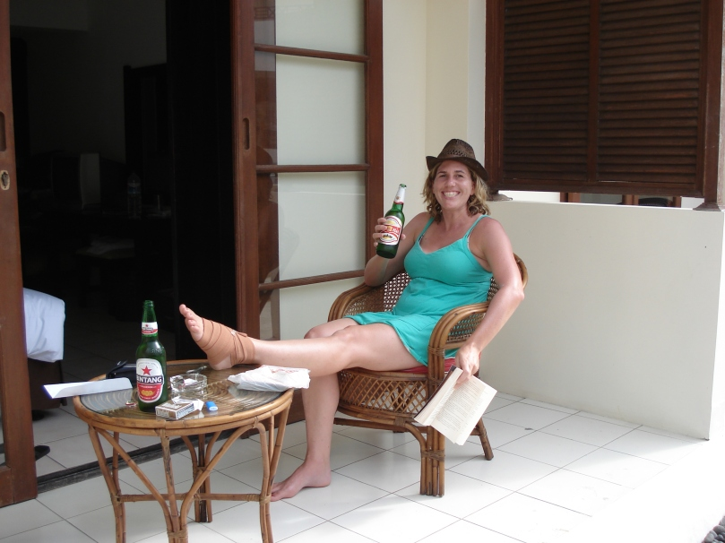 Fractured foot from surfing but nothing a Bintang wont fix